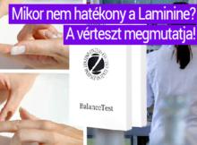 Laminine tesztje